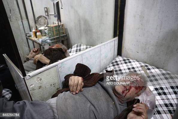 TOPSHOT A wounded Syrian man waits to receive treatment at a makeshift hospital following reported government airstrike on the rebelheld town of...