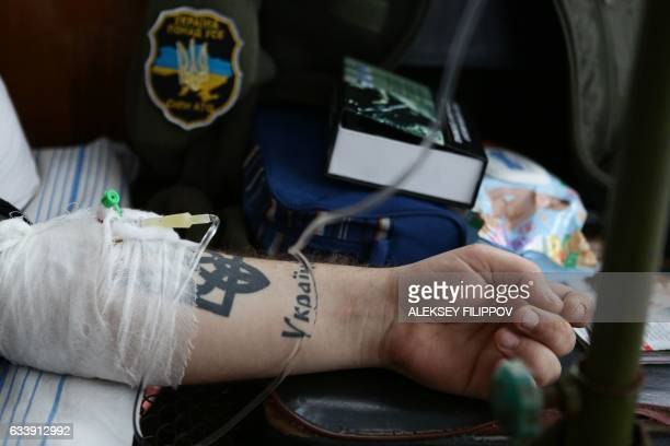 A wounded Ukrainian serviceman with a tattoo depicting the Ukrainian State Emblem and the word 'Ukraine' is treated at the military hospital in the...