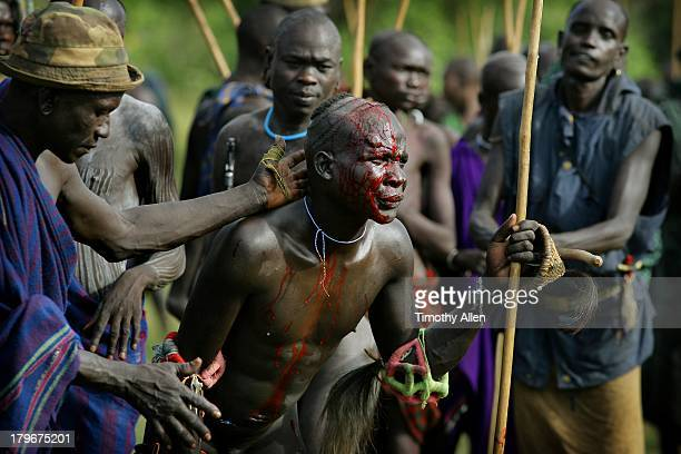 Wounded warrior at Donga stick fight, Omo Valley