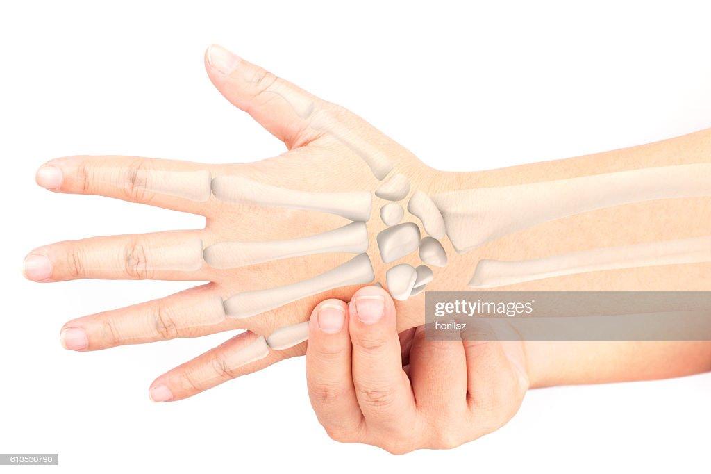 Bandverletzung am Handgelenk