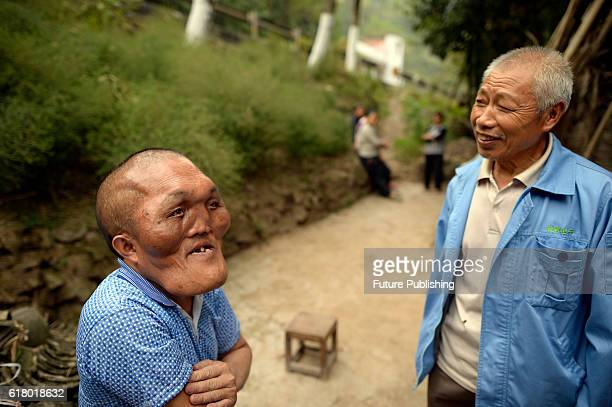 Xia Yuanhai 52yearold whose head is about the twice size of a normal man is seen during an interview in his home village on September 23 2016 in...