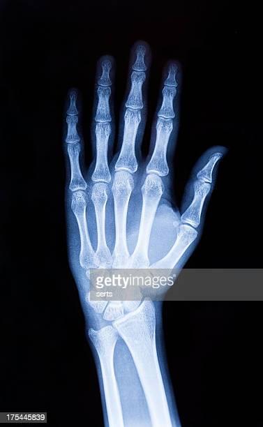 X-ray hand (XXXL)