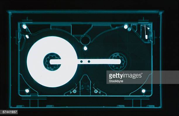 x-ray image of a audio cassette