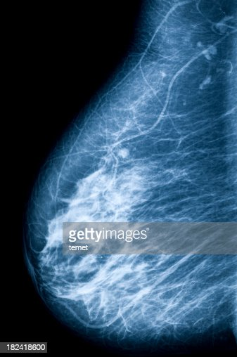 X-ray image of breast and nipple