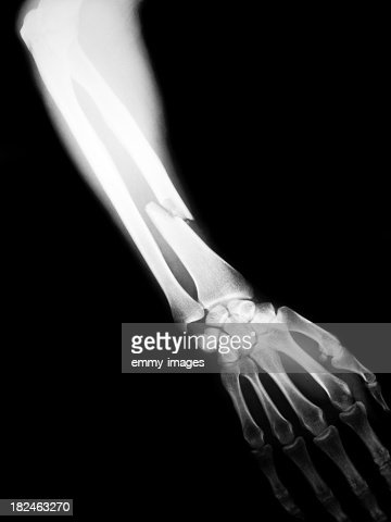 X-ray image of human arm with fracture