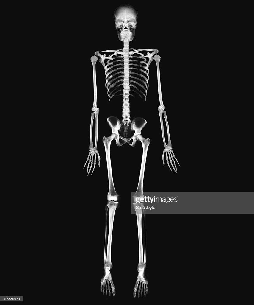 x-ray image of the full skeletal system of a person standing : Stock Photo