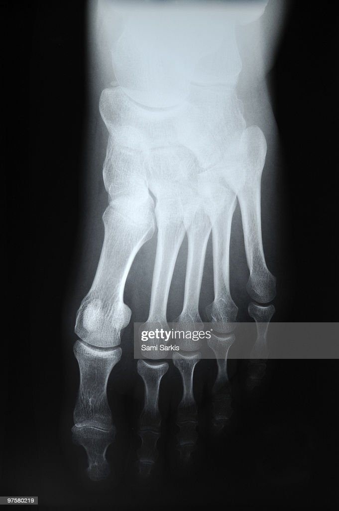 X-ray image of woman's (45) right foot : Stock Photo