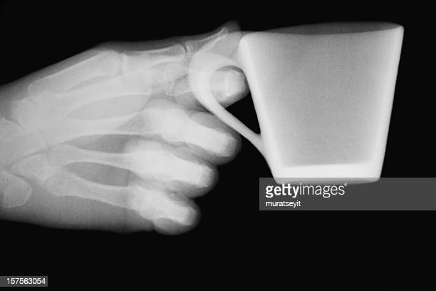 X-ray image with a hand and cup of coffee XXXL