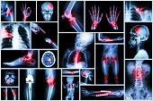 Collection X-ray multiple human's organ & orthopedic surgery & Multiple disease (Pulmonary tuberculosis , Gout , Rheumatoid arthritis ,Spondylosis , Fracture bone , Stroke , Brain tumor , etc)