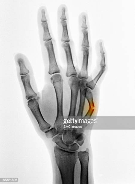 x-ray of a broken hand