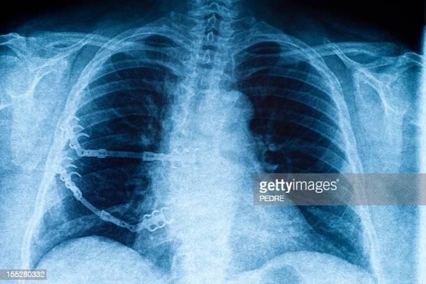 X-ray of einen geschwungenen Wirbelsäule