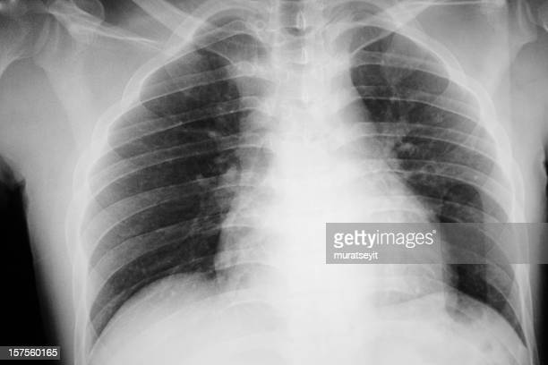 x-ray of a smoking man