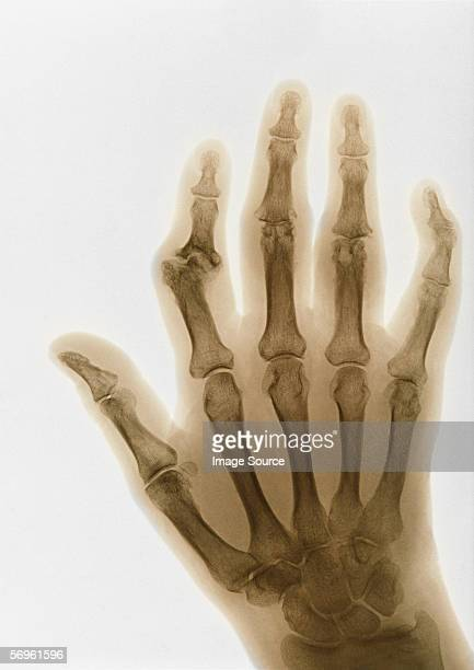 X-ray of arthritic fingers