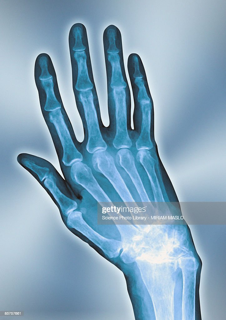 X-ray of arthritis hand, close-up