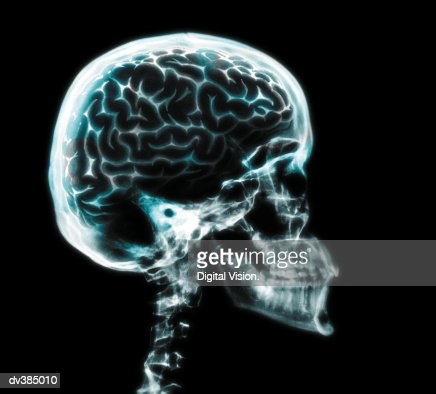 X-ray of brain in skull : Stock Photo