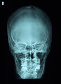 X-ray of frontal human scull
