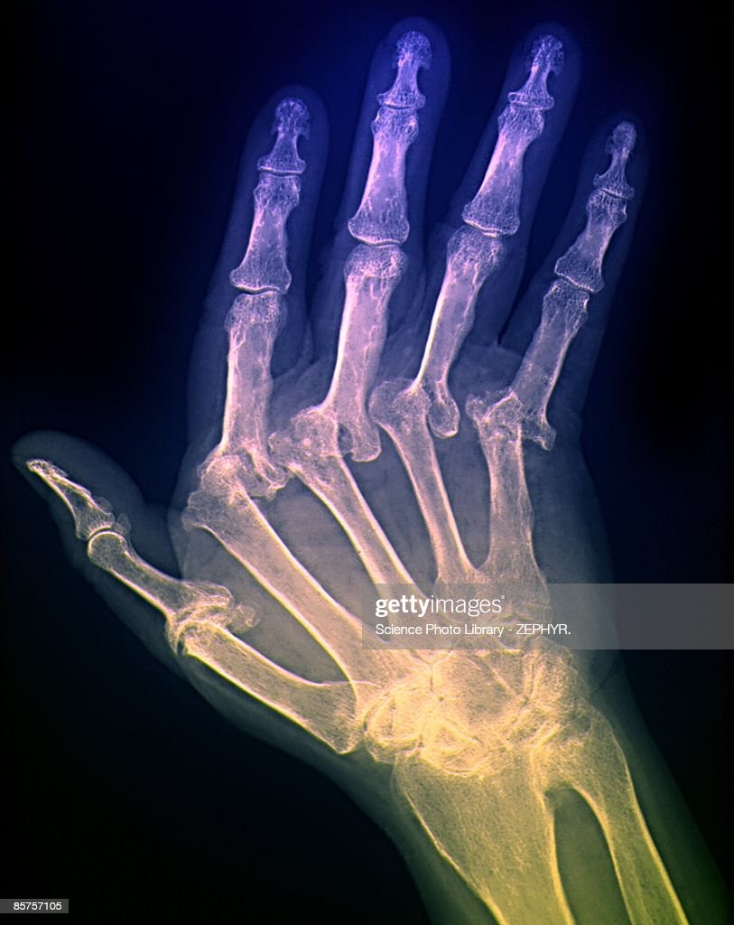 X-ray of hand of patient : Stock Photo