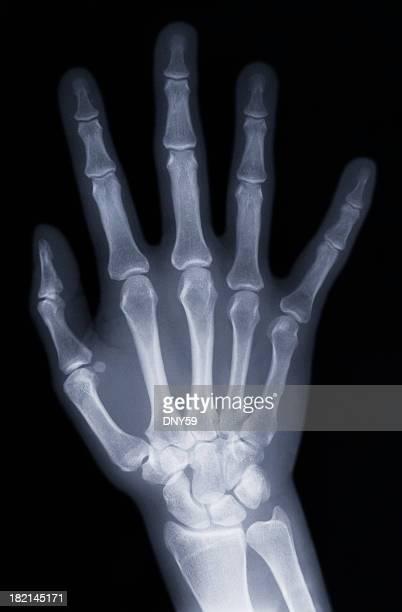 Xray of Hand