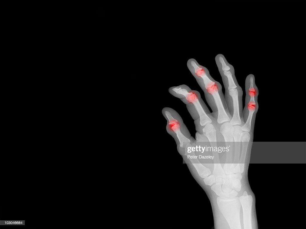 X-ray of hand showing arthritis