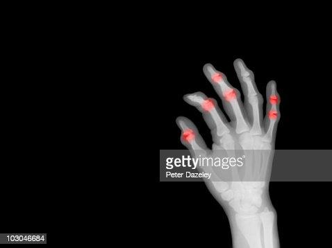 X-ray of hand showing arthritis