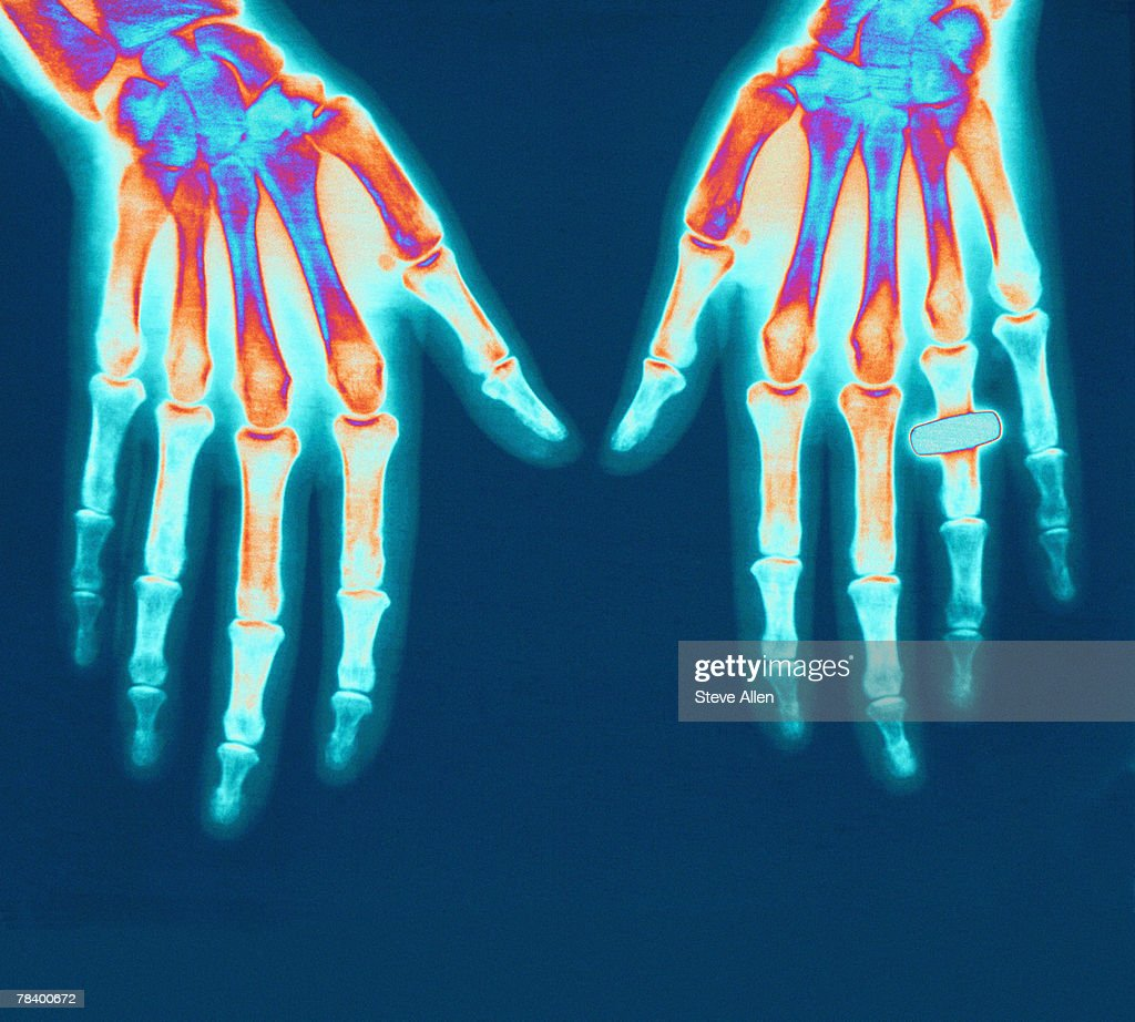 X-ray of hands : Stock Photo