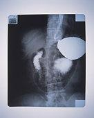 X-ray of human backbone with internal organs