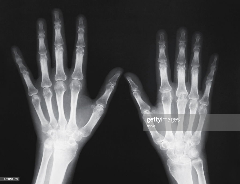X-ray of human wrist with arthritis : Stock Photo