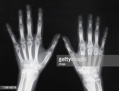 Arthritis singles