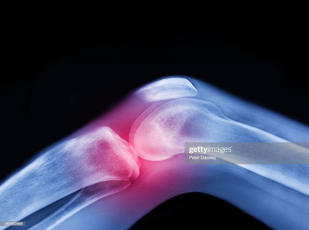 Xray Of Knee With Sports Injury Stock Photo | Getty Images