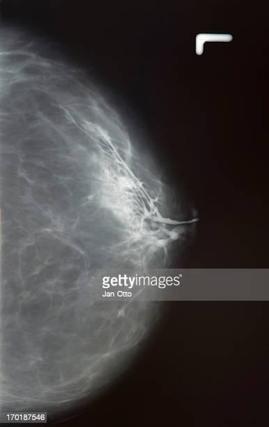 X-ray of Mamma