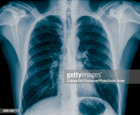 X-ray of normal healthy chest front view, 36 year old male