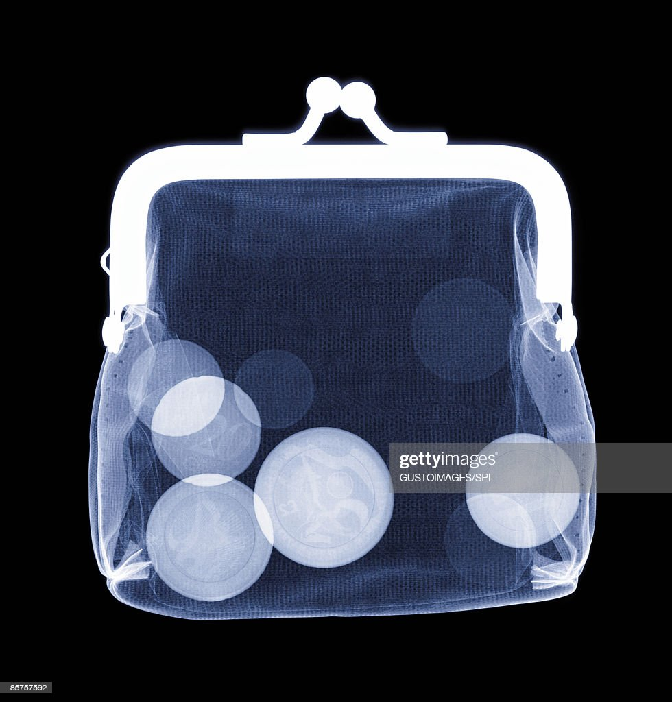 X-ray of purse containing coins