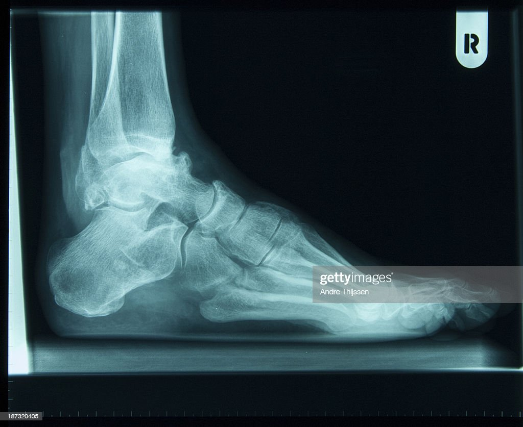 x-ray of right foot