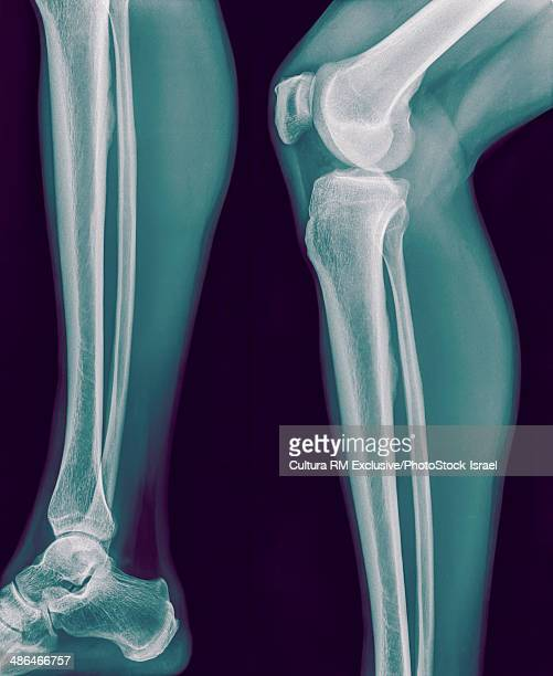 X-ray of right knee and lower leg side view, no fracture or dislocation, 42 year old male