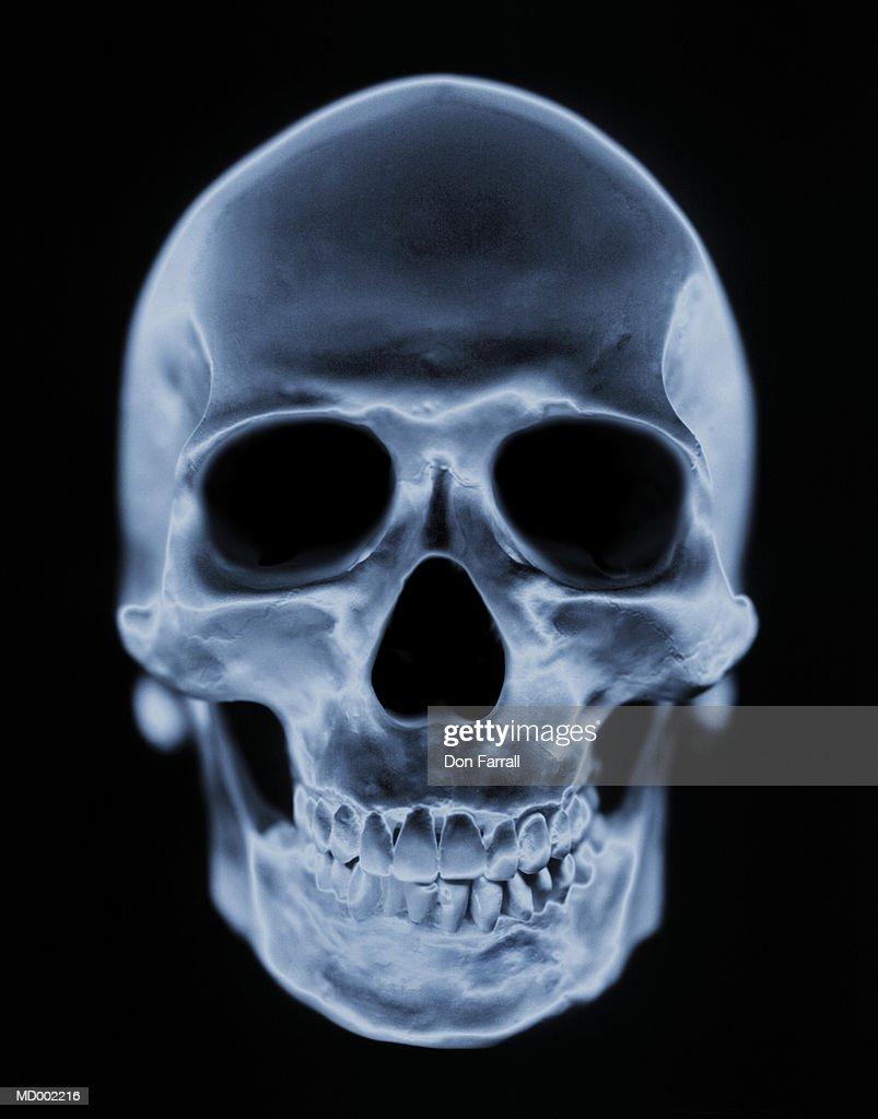 X-ray of Skull : Stock Photo