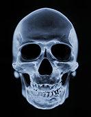 X-ray of Skull