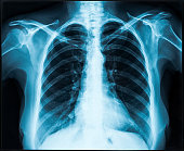 Woman thorax x-ray for lungs examination