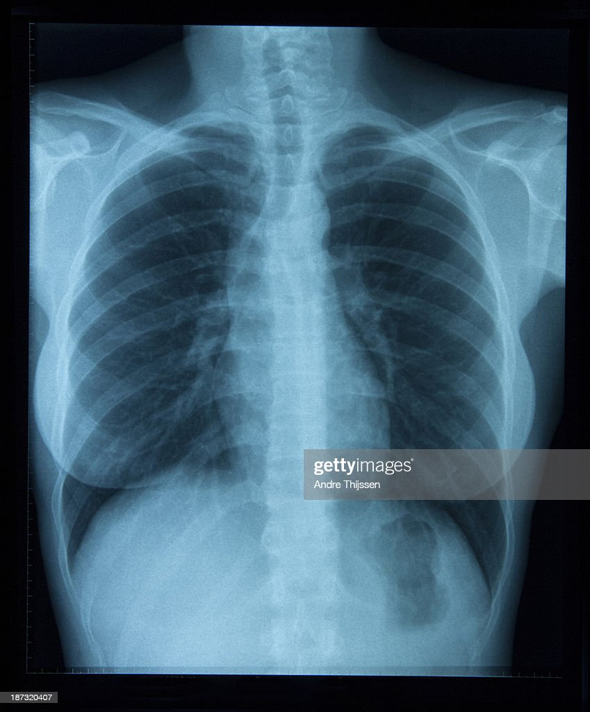 x-ray of woman's chest : Stock Photo