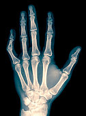 X-ray of wrist, hand and fingers with dislocated left thumb due to contusion, 34 year old male