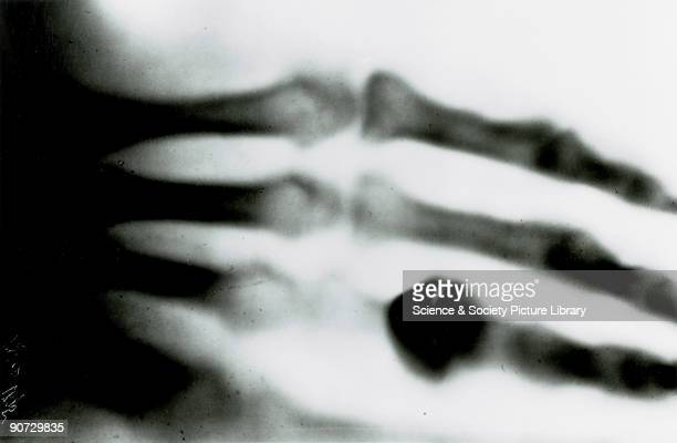 Xray photograph taken by Wilhem Conrad Roentgen of his wife's hand in December 1895 Roentgen was Professor of Physics at the University of Wurzburg...