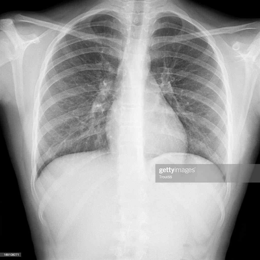 X-ray picture - Chest