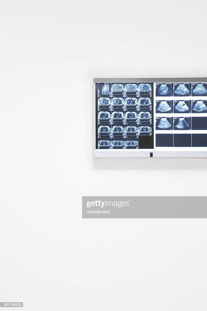 X-rays and ultra sound results hanging on wall : Stock Photo