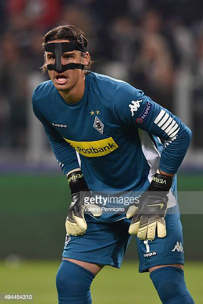 Yann Sommer of VfL Borussia Moenchengladbach looks on during the UEFA Champions League group stage match between Juventus and VfL Borussia...