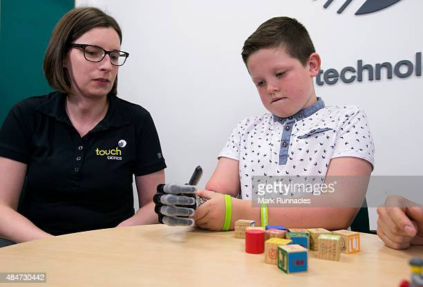 9 year old Josh Cathcart from Dalgety Bay in Fife with Prosthetist Alison Goodwin during the final fitting for his new bionic hand at Touch Bionics'...