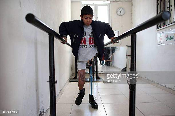13 year old Naserlalah Ibrahim who lost his left leg during fighting in Syria uses a frame to support himself as he learns to walk on a prosthetic...
