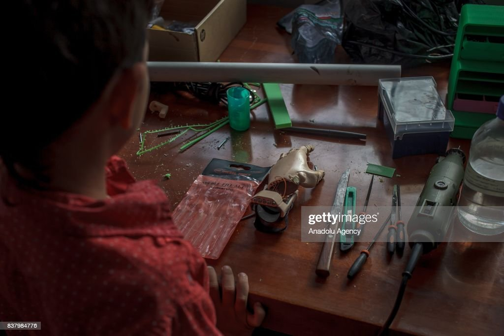 Yeisson Villanueva looks his newly designed 3D printed hand at Foundation of Materialization 3D in Bogota, Colombia August 08, 2017. A group of volunteers of the nonprofit project 'Do it yourself' of Foundation of Materialization 3D provide hands and arms to those born with missing limbs or who lost them on war, disease or natural disaster, at the Build It Workspace studio, which teaches people how to use high-tech printers.