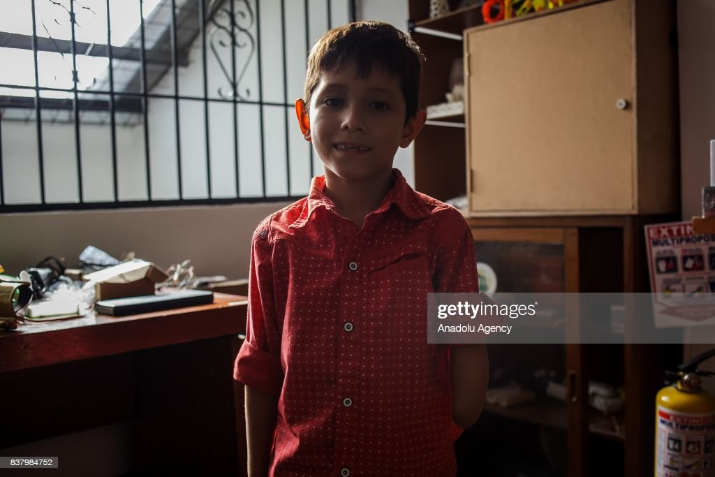 Yeisson Villanueva poses for a photo after trying his newly designed 3D printed hand with a Captain America logo on it at Foundation of Materialization 3D in Bogota, Colombia August 08, 2017. A group of volunteers of the nonprofit project 'Do it yourself' of Foundation of Materialization 3D provide hands and arms to those born with missing limbs or who lost them on war, disease or natural disaster, at the Build It Workspace studio, which teaches people how to use high-tech printers.