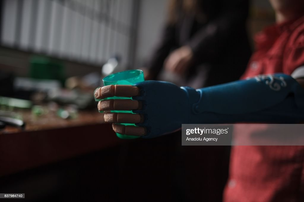 Yeisson Villanueva tries his newly designed 3D printed hand with a Captain America logo on it at Foundation of Materialization 3D in Bogota, Colombia August 08, 2017. A group of volunteers of the nonprofit project 'Do it yourself' of Foundation of Materialization 3D provide hands and arms to those born with missing limbs or who lost them on war, disease or natural disaster, at the Build It Workspace studio, which teaches people how to use high-tech printers.