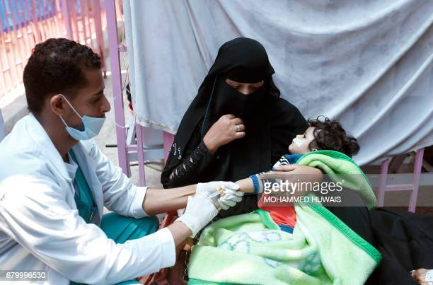 A Yemeni child suspected of being infected with cholera receives treatment at a hospital in Sanaa on May 6 2017 At least 570 suspected cases of...