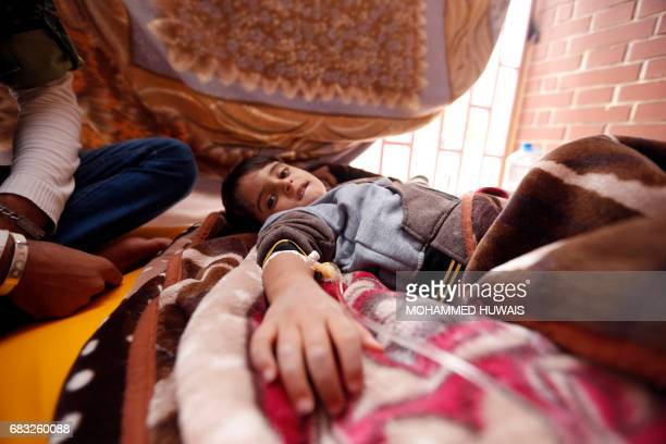 A Yemeni child suspected of being infected with cholera receives treatment at a hospital in Sanaa on May 15 2017 / AFP PHOTO